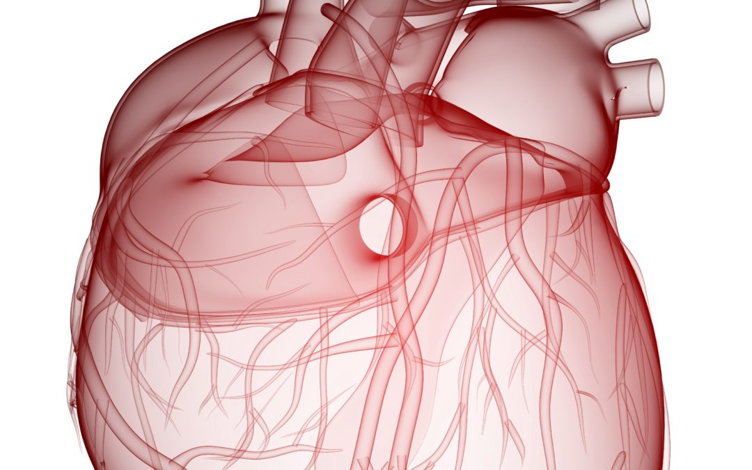 Self-degradable heart implants